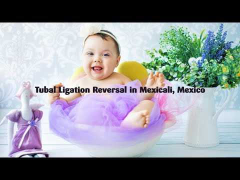 Effective-and-Affordable-Tubal-Ligation-Reversal-in-Mexicali-Mexico