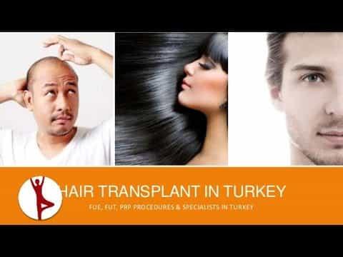 Hair-Transplant-in-Turkey-Solution-for-Hair-Loss