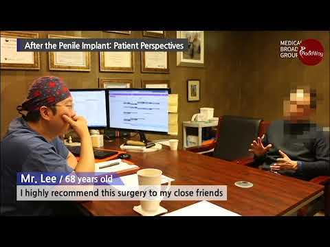 IPP-Surgery-for-ED-Cures-Peyronies-Disease-and-Erectile-Dysfunction-for-68-Years-Old-in-South-Korea