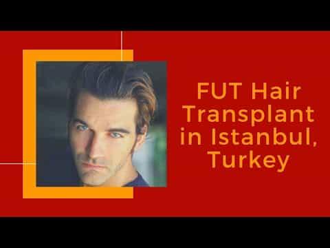 Best-FUT-Hair-Transplant-in-Istanbul-Turkey