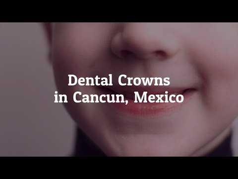 Tips-to-Get-the-Best-Dental-Crowns-in-Cancun-Mexico