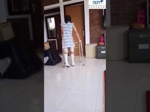 SCI-Patient-Can-Stand-Up-Again-After-Stem-Cell-Treatment