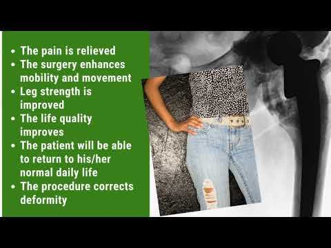 Best-Effective-Package-for-Hip-Replacement-in-Cabo-San-Lucas-Mexico
