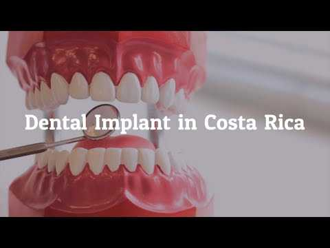 Key-Factors-to-Learn-about-Dental-Implants-in-Costa-Rica