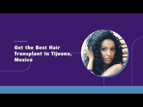 Get-the-Best-Hair-Transplant-in-Tijuana-Mexico