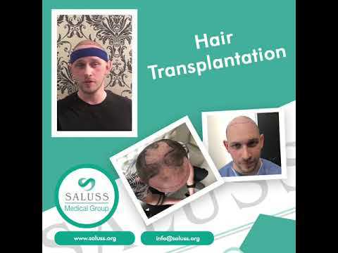 Satisfied-Patient-after-Successful-Hair-Transplant-at-Saluss-Medical-Group-Antalya-Turkey