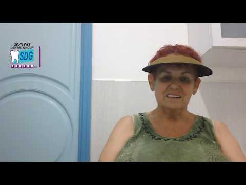 All-on-4-Dental-Implants-at-Sani-Dental-Group-Los-Algodones-Mexico