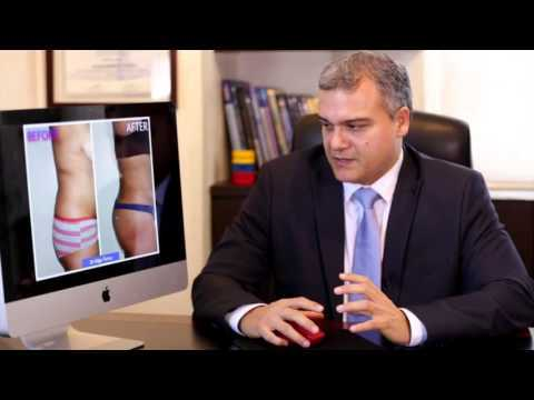 Best-Liposculpture-by-Top-Plastic-Surgeon-in-Cancun-Mexico