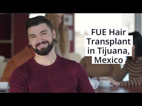 Expert-Cosmetologists-bring-Top-Notch-FUE-Hair-Transplant-in-Tijuana-Mexico