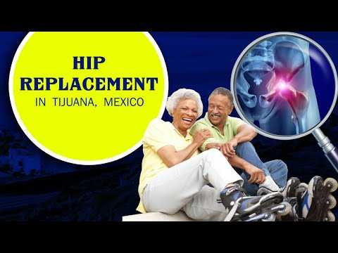 Best-Package-for-Hip-Replacement-in-Tijuana-Mexico