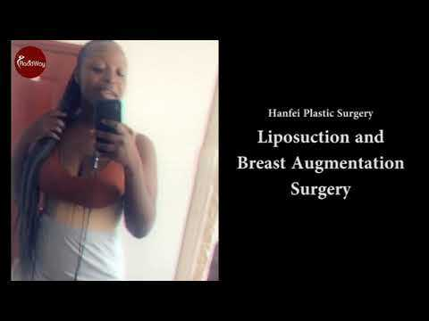 Happy-Patient-after-Liposuction-and-Breast-Augmentation-at-Hanfei-Plastic-Surgery-Guangzhou-China