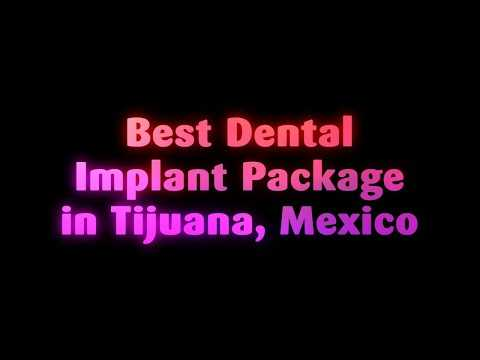 Best-Dental-Implant-Package-in-Tijuana-Mexico