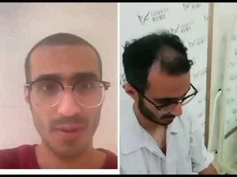 Hair-Transplant-at-Hanfei-in-Guangzhou-China-Patient-Feedback
