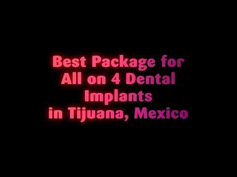 Best-Package-for-All-on-4-Dental-Implants-in-Tijuana-Mexico