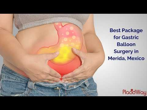 Most-Affordable-Intragastric-Balloon-Package-in-Merida-Mexico