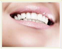 PV Smile