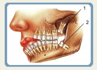 Dentistry Procedure in Istanbul Turkey