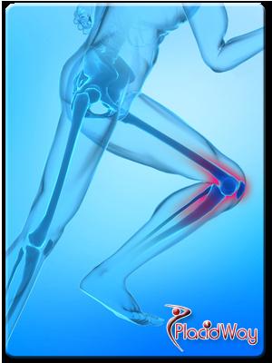 Osteoarthritis and Obesity
