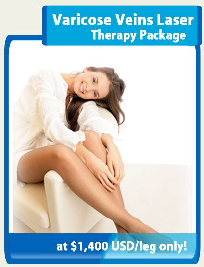 Varicose-Veins-Therapy-Package-Image-Seoul-Sky-Hospital-Seoul-Korea