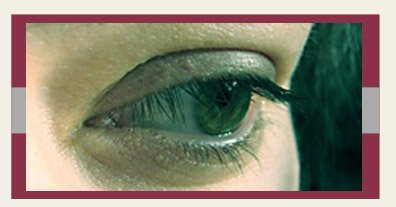 Eye Diseases Stem Cell Therapy