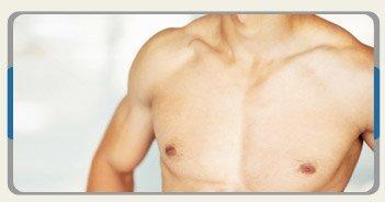 arcadia-clinic-cosmetic-surgery-image-gynaecomastia-croatia