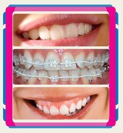 estethica-healthy-beauty-dentistry-turkey