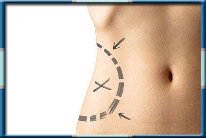 Tummy Tuck Procedure in Wonjin Beauty Medical Group
