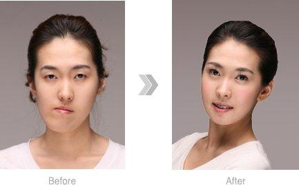 Dental Procedures Image Wonjin Beauty Medical Group