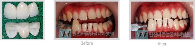 Dental Procedures Image Teeth Wonjin Beauty Medical Group