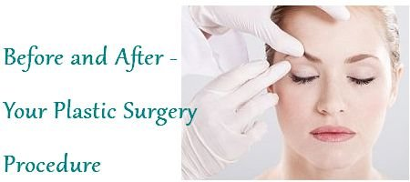 Before And After Plastic Surgery Image
