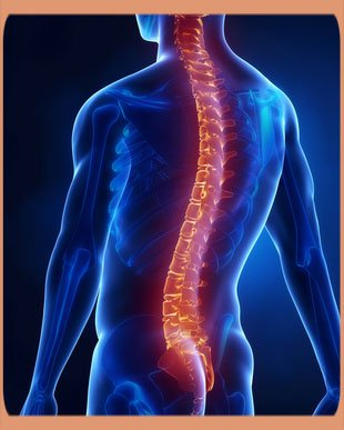 Causes of Lumber Spinal Stenosis