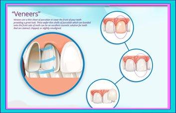 Best Dental Veneers