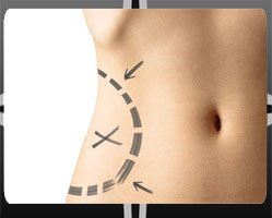 Tummy Tuck Procedure