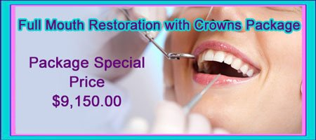 Full Mouth Restoration with Crowns Package Cost