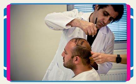 Best Hair Transplant in Turkey