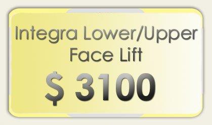 Integra Face Lift Costs
