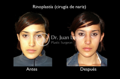 Rhinoplasty Surgery in Mexico