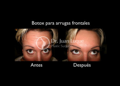 Botox in Mexicali