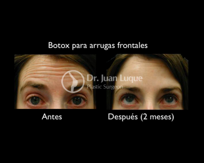 Botox in Mexico