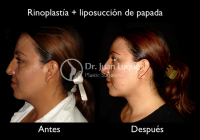 Rhinoplasty in Mexicali