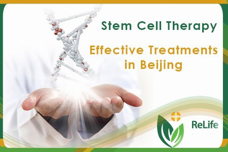 stem cell therapy beijing china