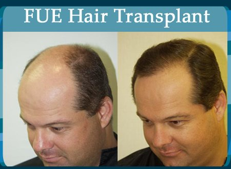 Cevre Private Hospital FUE Hair Transplant