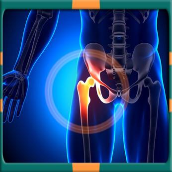 Affordable Orthopedic Treatments in Moldova
