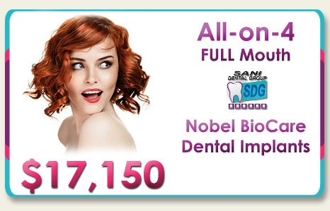 All on 4 Nobel Four Dental Implants Cost in Los Algodones Mexico