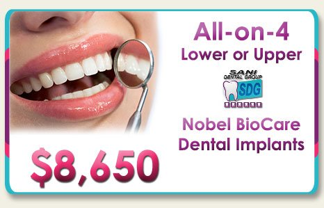 All on 4 Nobel Dental Implants Price in Los Algodones Mexico