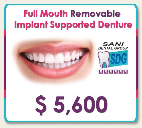 Removable Implant Supported Denture Cost in Los Algodones, Mexico at Sani Dental Group