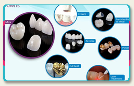 Best Dental Crowns in Los Algodones Mexico