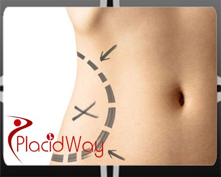 Dr Arnold Angeles Liposuction Doctor in Philippines