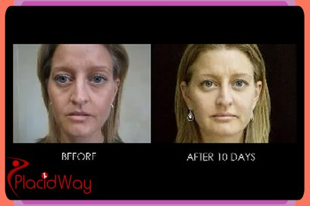 Before and After Pictures of Skin Therapies 1