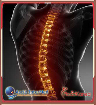 Affordable Spinal Surgery in Seoul